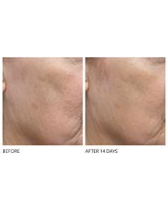 Dr. Dennis Gross Skincare - Alpha Beta® Exfoliating Moisturizer